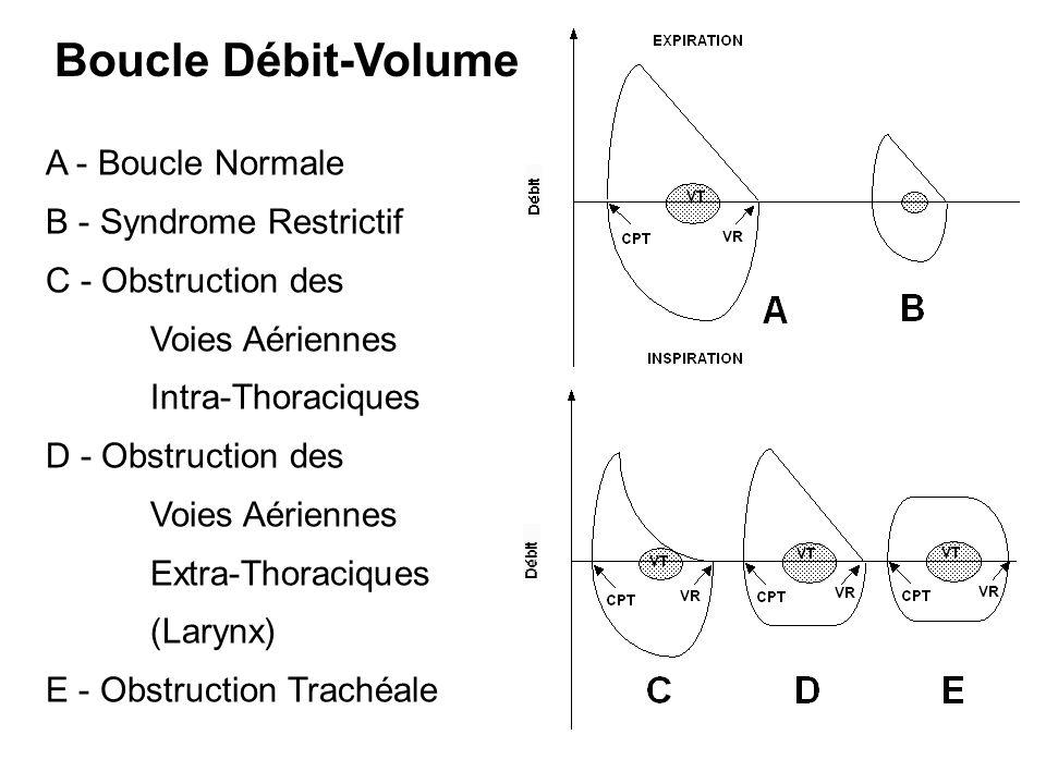 Boucle Débit-Volume A - Boucle Normale B - Syndrome Restrictif