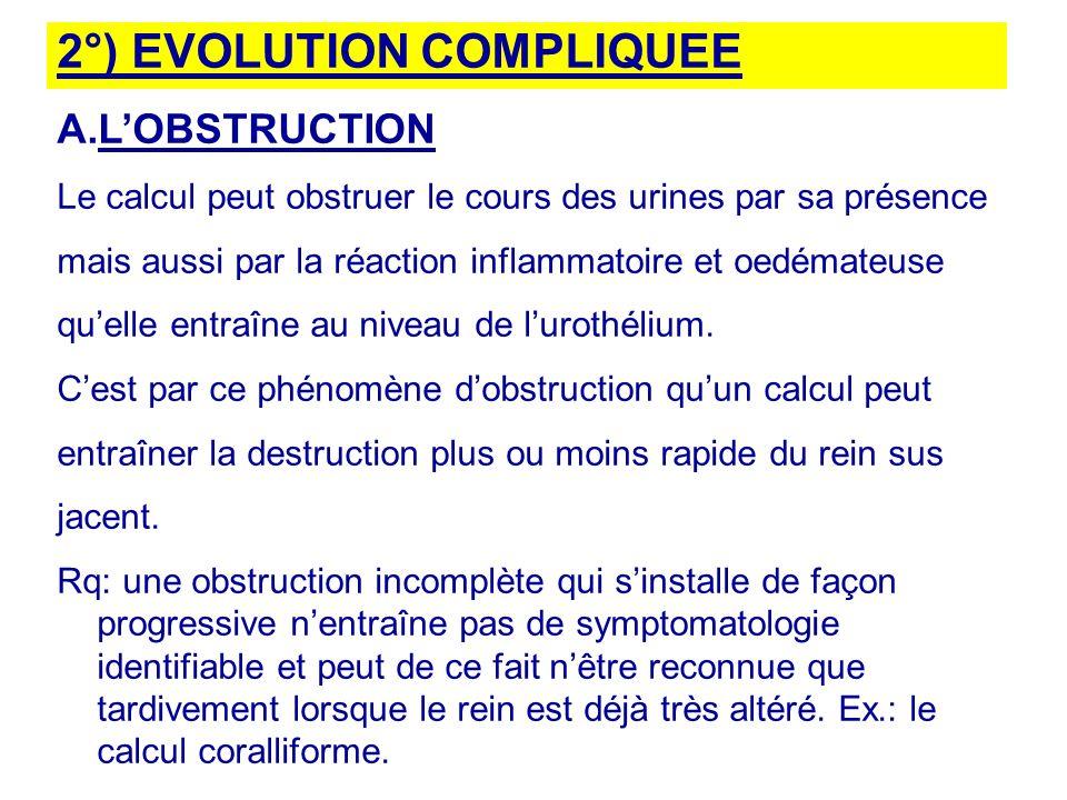 2°) EVOLUTION COMPLIQUEE