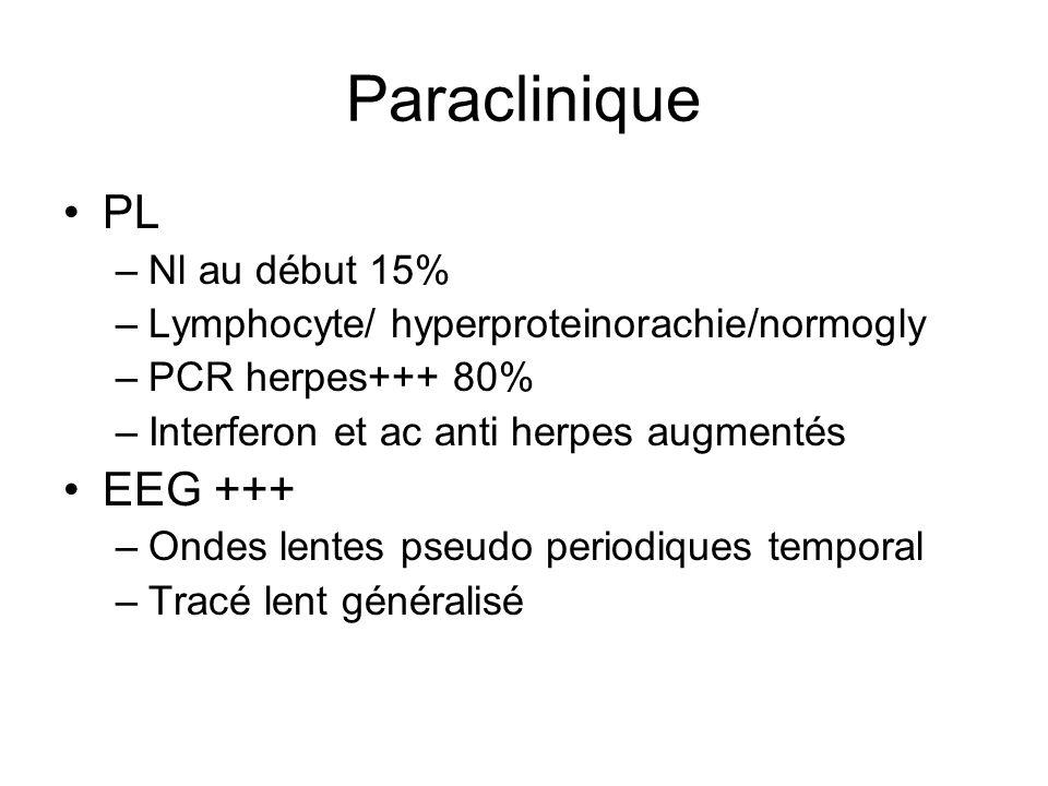Paraclinique PL EEG +++ Nl au début 15%