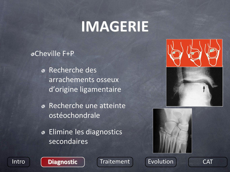 IMAGERIE Cheville F+P. Recherche des arrachements osseux d'origine ligamentaire. Recherche une atteinte ostéochondrale.