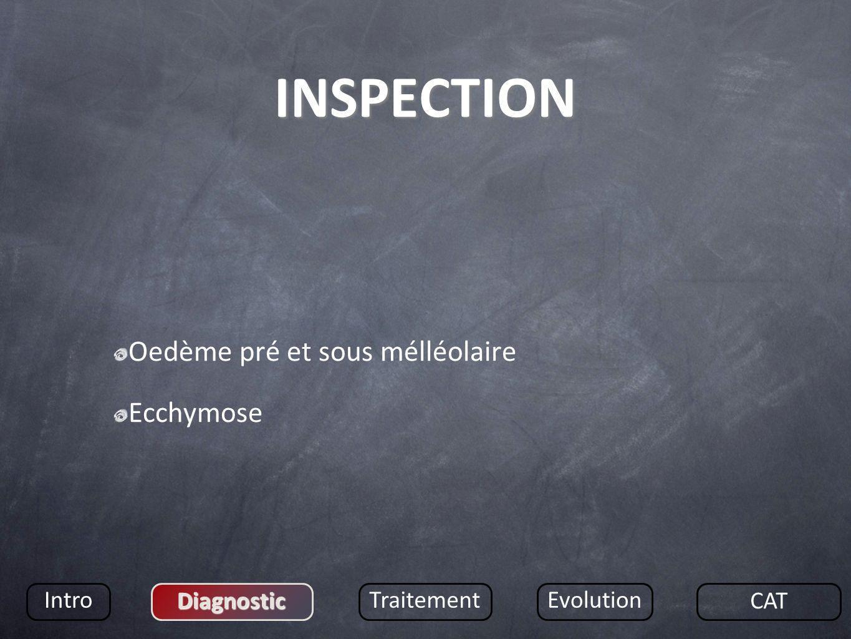 INSPECTION Oedème pré et sous mélléolaire Ecchymose Intro Diagnostic