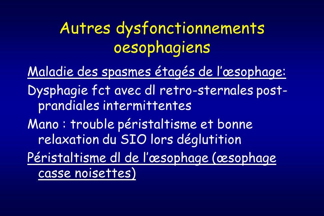 Autres dysfonctionnements oesophagiens