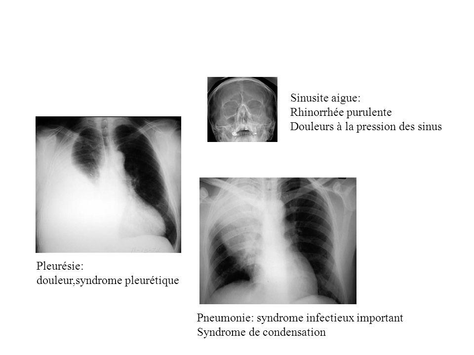 Sinusite aigue: Rhinorrhée purulente. Douleurs à la pression des sinus. Pleurésie: douleur,syndrome pleurétique.