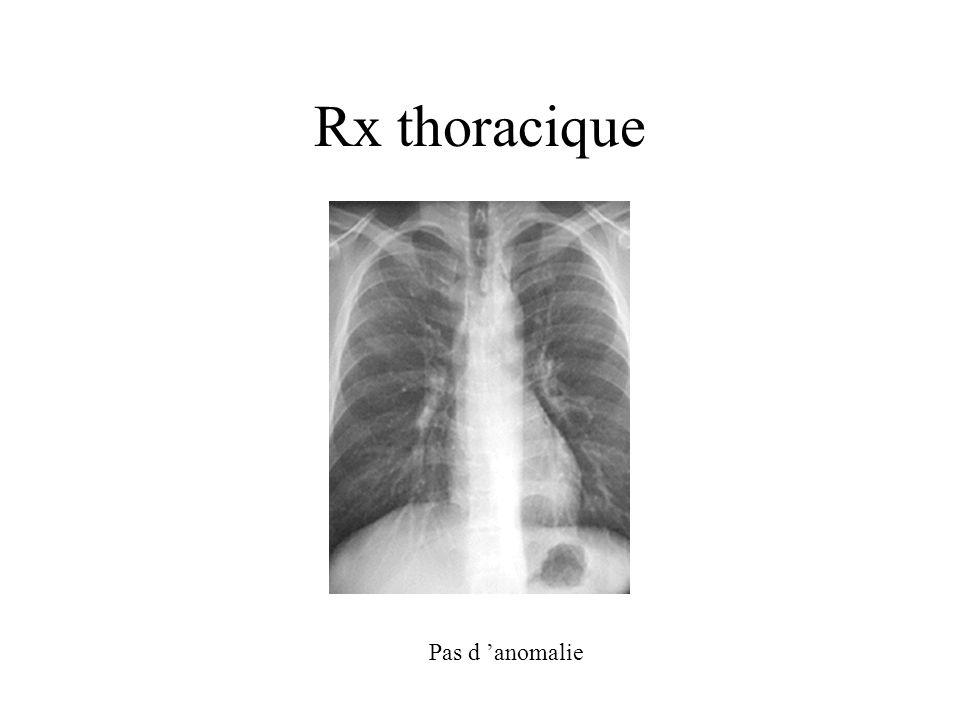 Rx thoracique Pas d 'anomalie