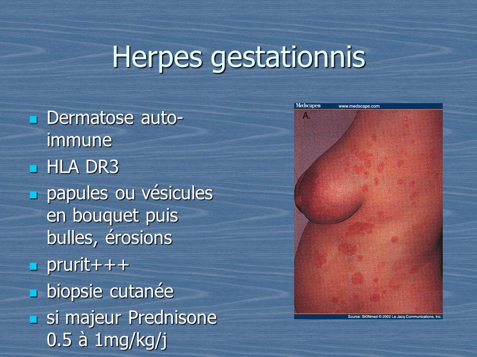 Herpes gestationnis Dermatose auto-immune HLA DR3