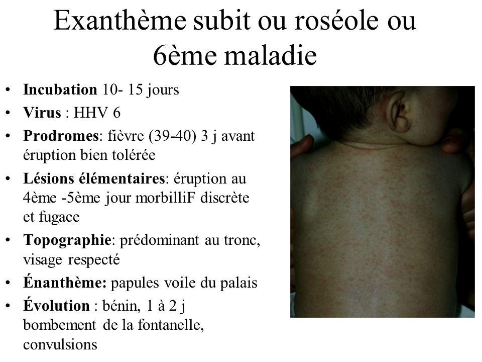 Exanthème subit ou roséole ou 6ème maladie