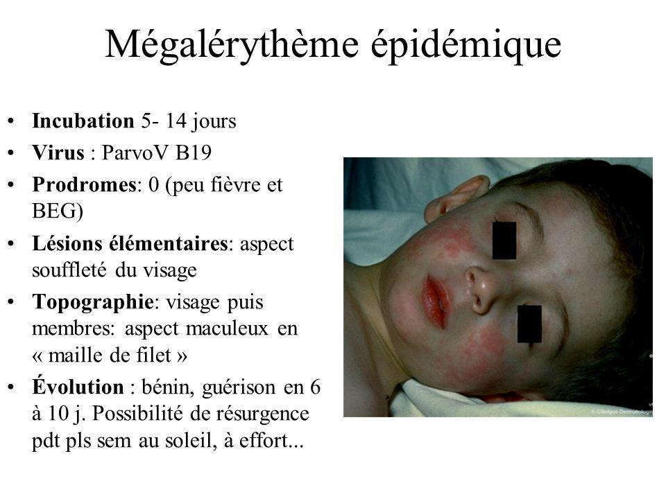 Mégalérythème épidémique