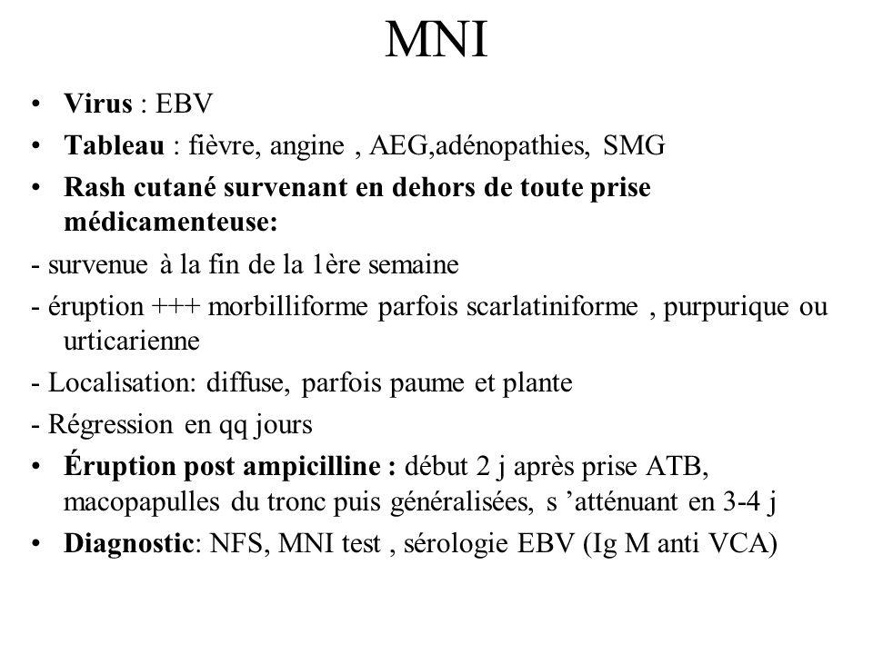 MNI Virus : EBV Tableau : fièvre, angine , AEG,adénopathies, SMG
