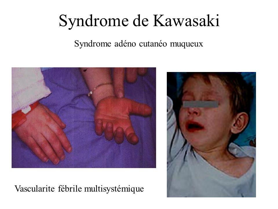 Syndrome de Kawasaki Syndrome adéno cutanéo muqueux