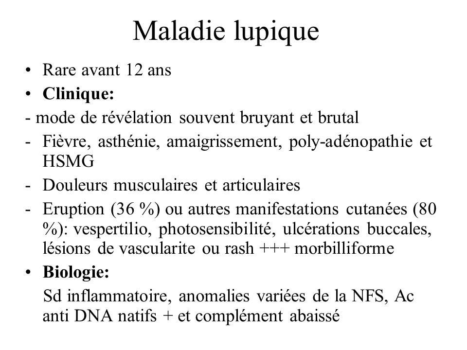 Maladie lupique Rare avant 12 ans Clinique: