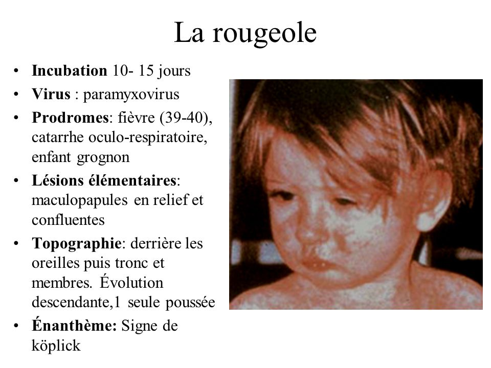 La rougeole Incubation 10- 15 jours Virus : paramyxovirus