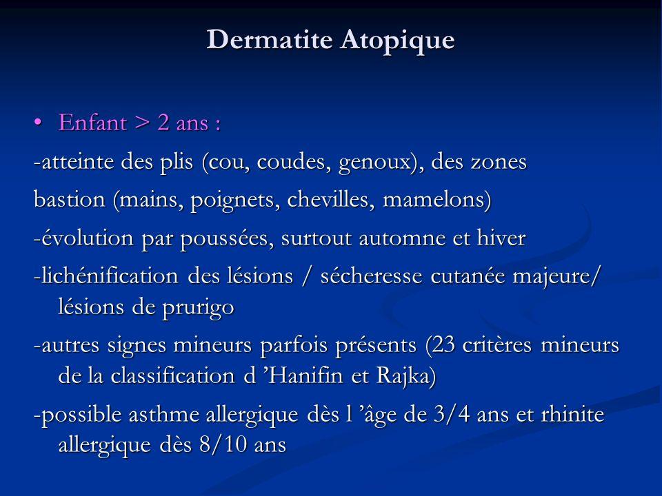 Dermatite Atopique Enfant > 2 ans :