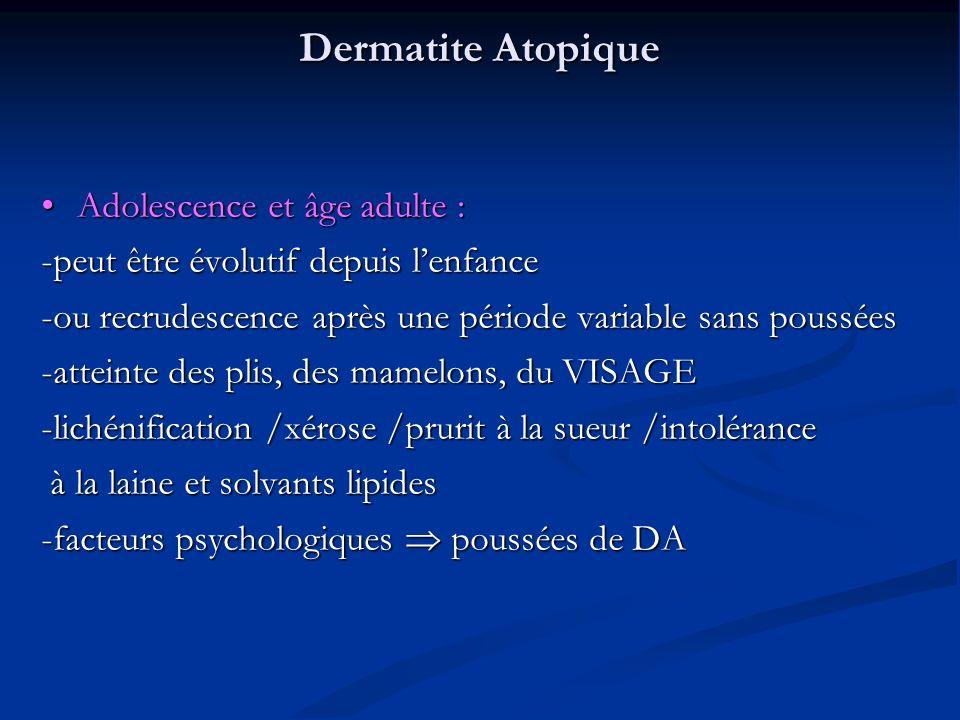 Dermatite Atopique Adolescence et âge adulte :