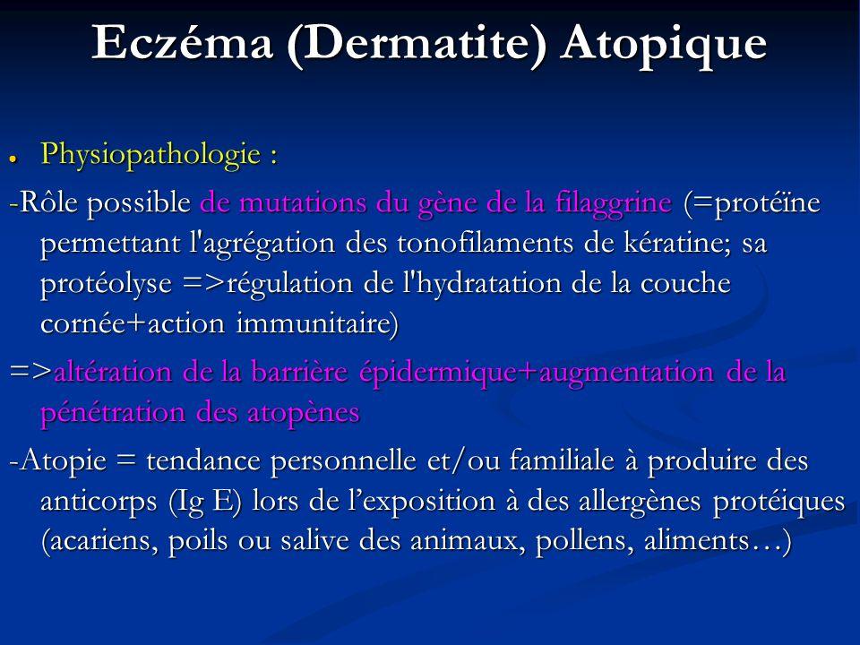 Eczéma (Dermatite) Atopique