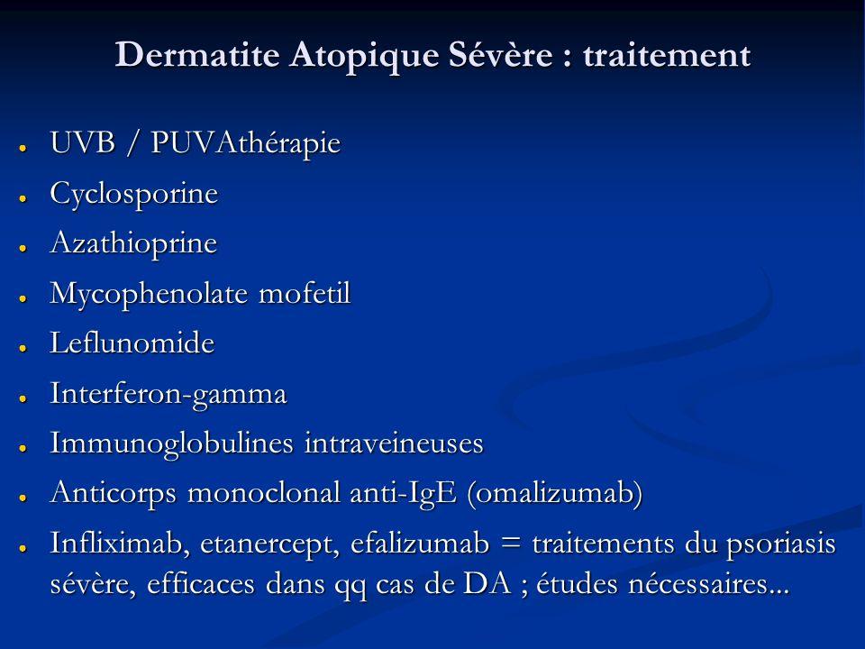 Dermatite Atopique Sévère : traitement