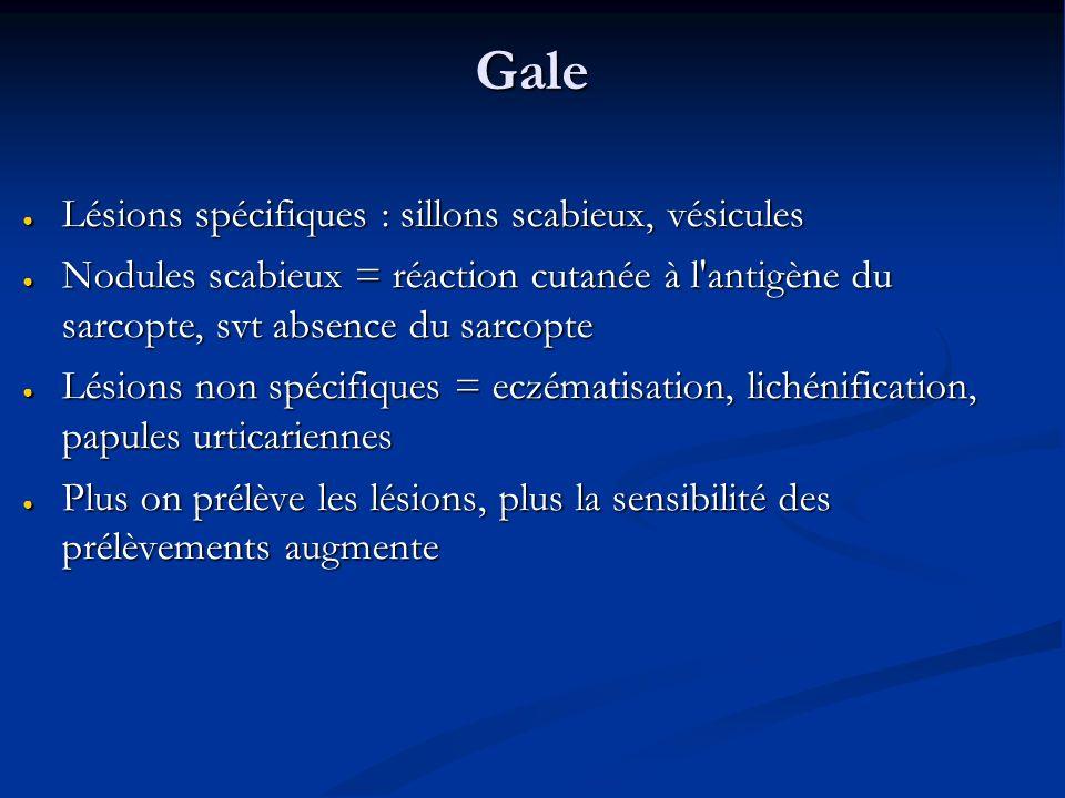 Gale Lésions spécifiques : sillons scabieux, vésicules
