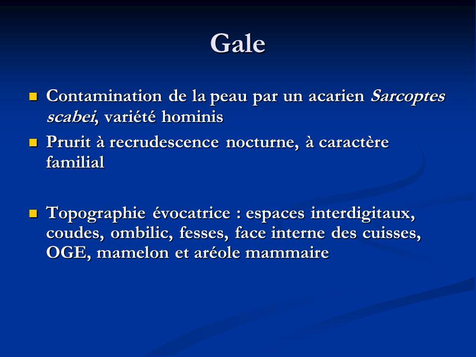 Gale Contamination de la peau par un acarien Sarcoptes scabei, variété hominis. Prurit à recrudescence nocturne, à caractère familial.