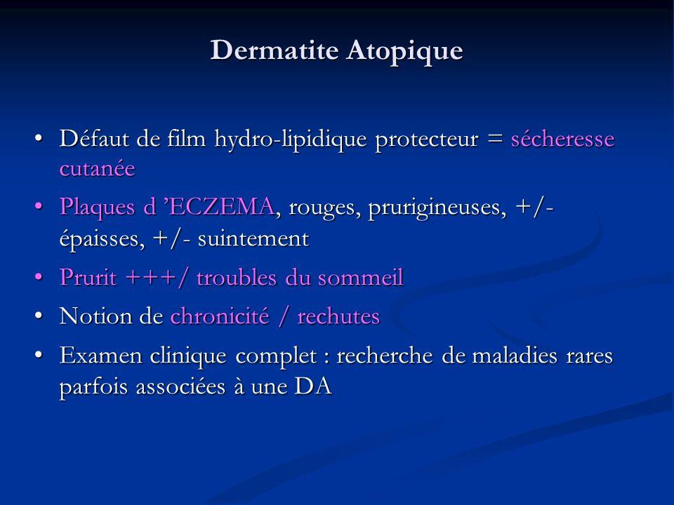 Dermatite Atopique Défaut de film hydro-lipidique protecteur = sécheresse cutanée.