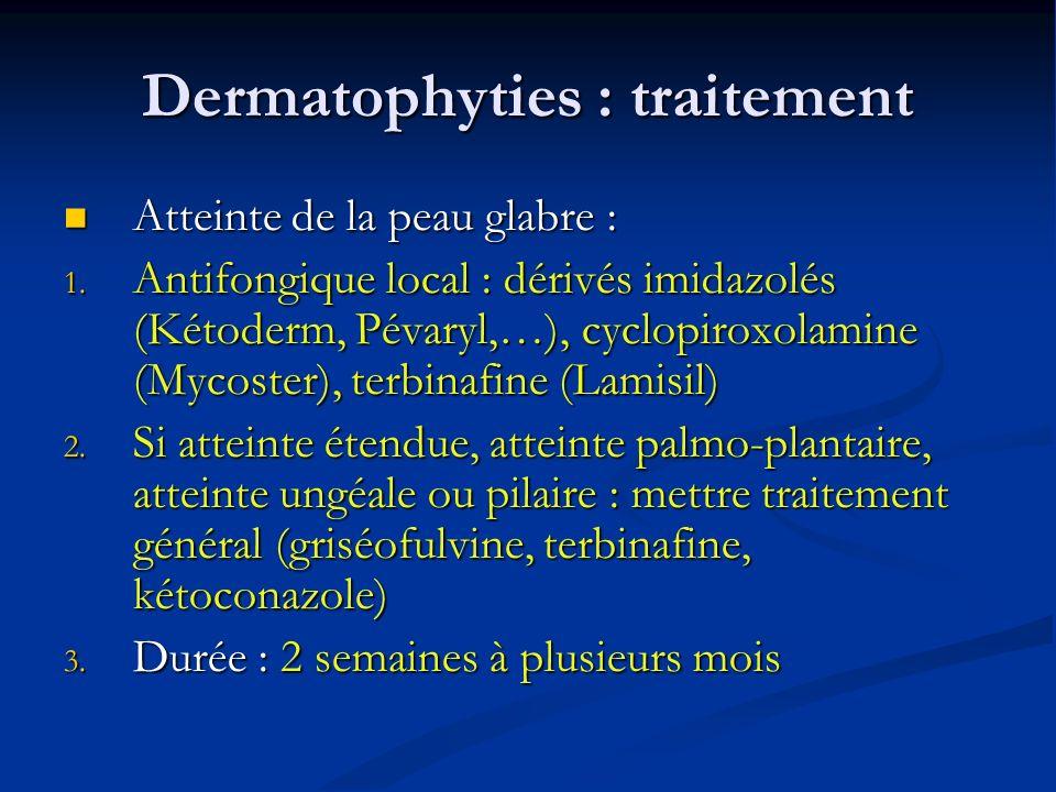 Dermatophyties : traitement