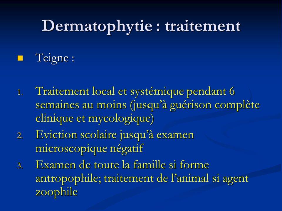 Dermatophytie : traitement