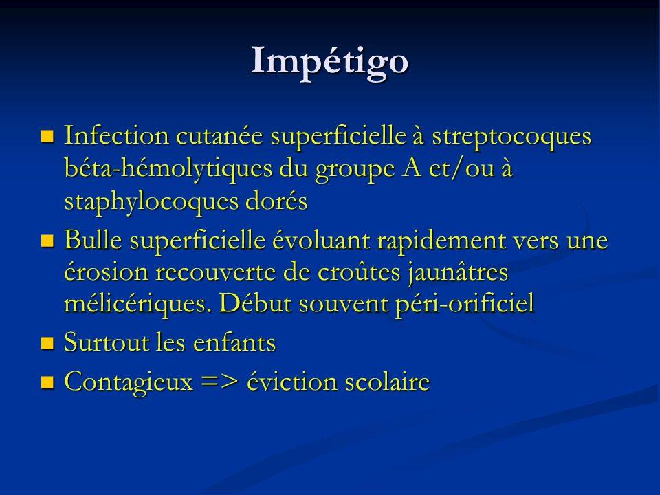 Impétigo Infection cutanée superficielle à streptocoques béta-hémolytiques du groupe A et/ou à staphylocoques dorés.