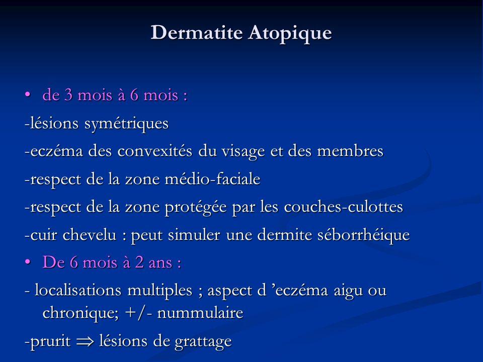 Dermatite Atopique de 3 mois à 6 mois : -lésions symétriques