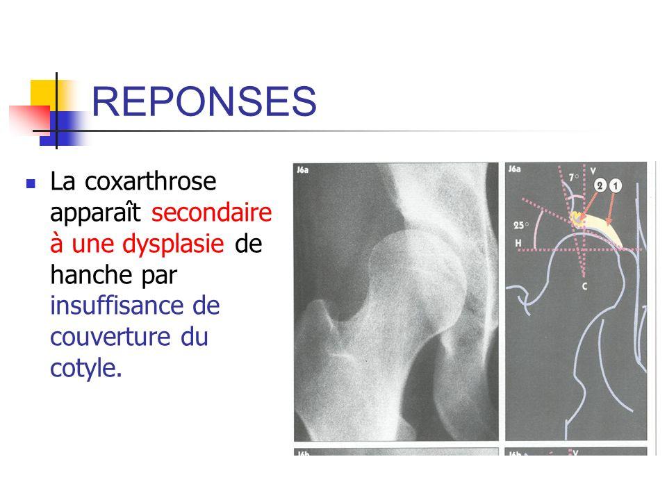 REPONSES La coxarthrose apparaît secondaire à une dysplasie de hanche par insuffisance de couverture du cotyle.