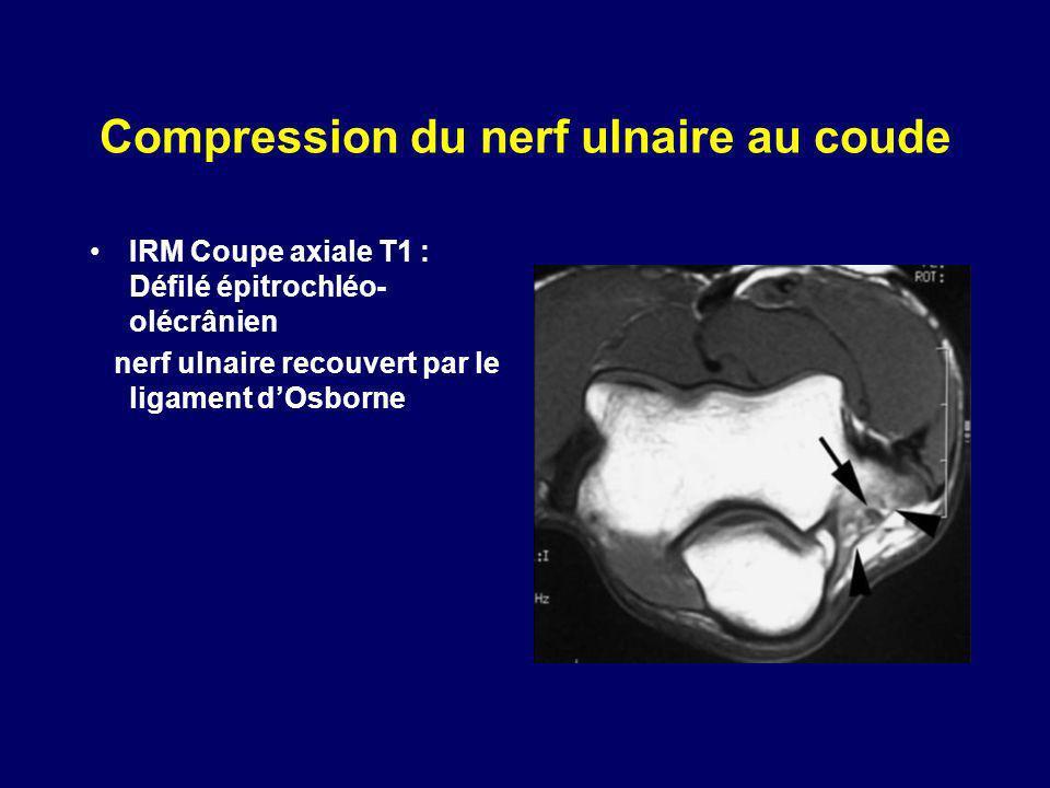 Compression du nerf ulnaire au coude