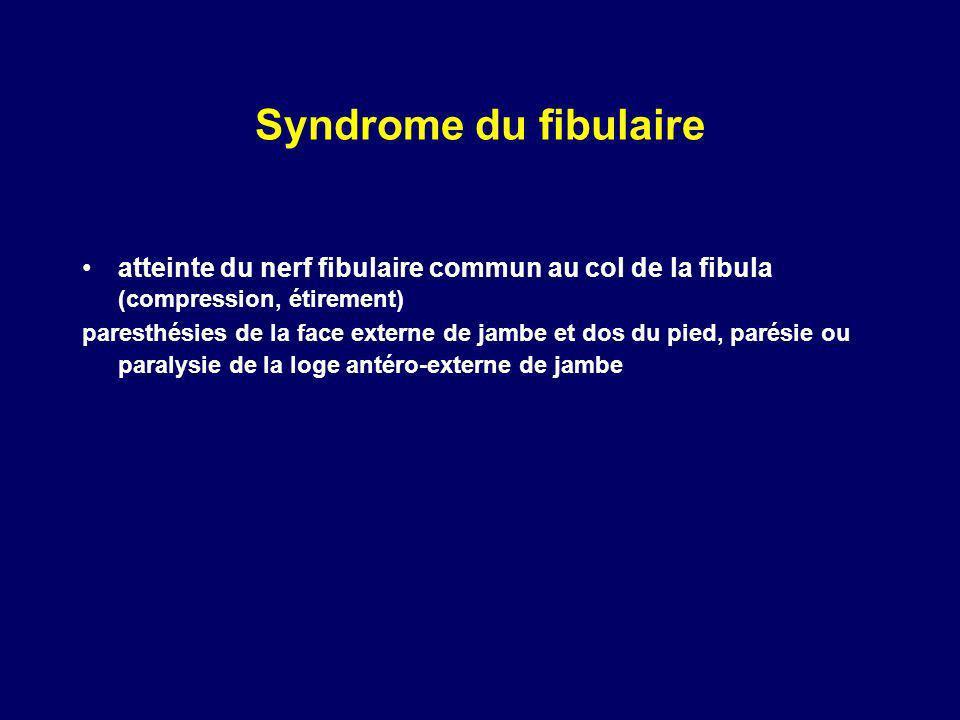 Syndrome du fibulaire atteinte du nerf fibulaire commun au col de la fibula (compression, étirement)