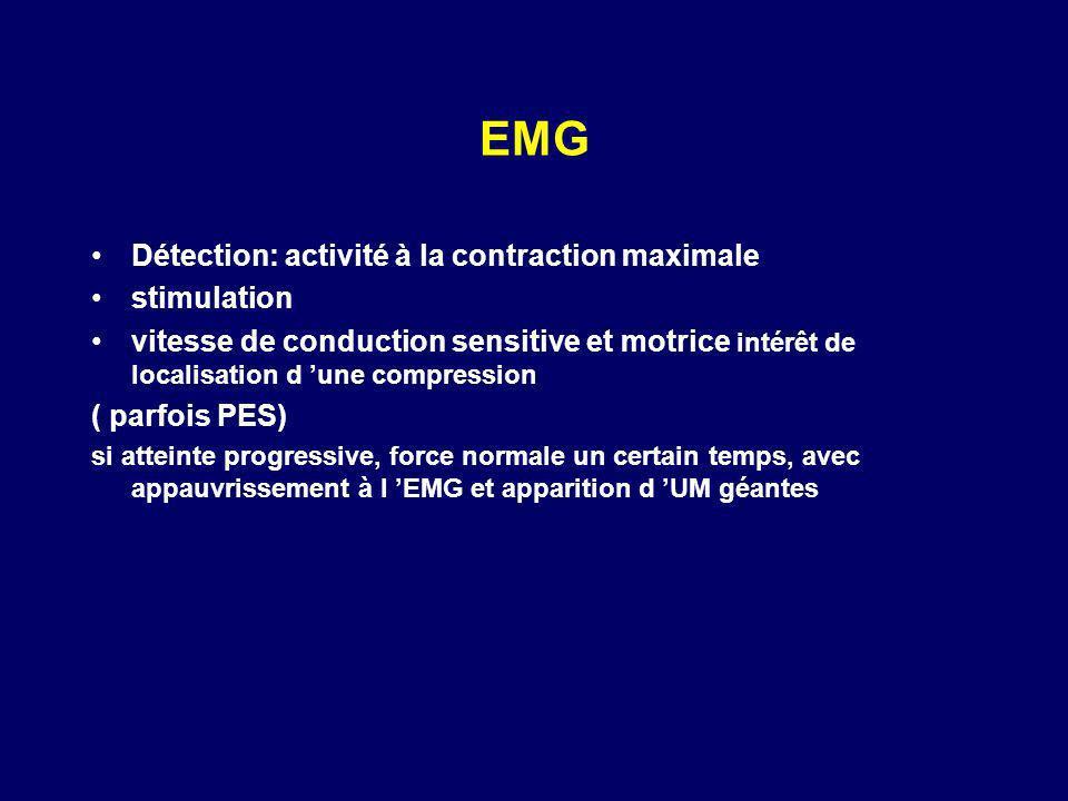 EMG Détection: activité à la contraction maximale stimulation