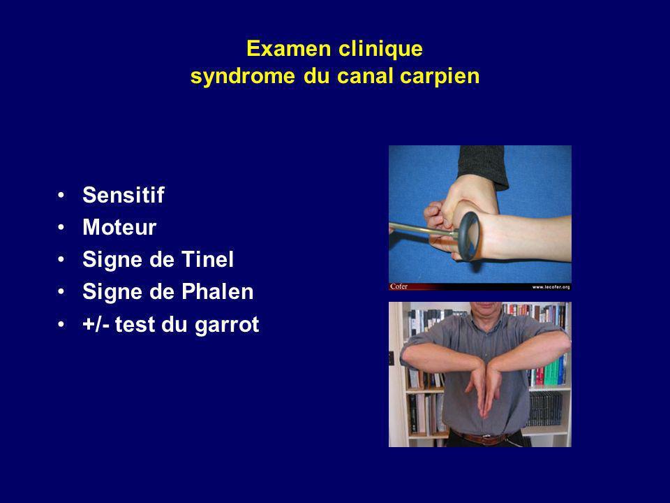 Examen clinique syndrome du canal carpien