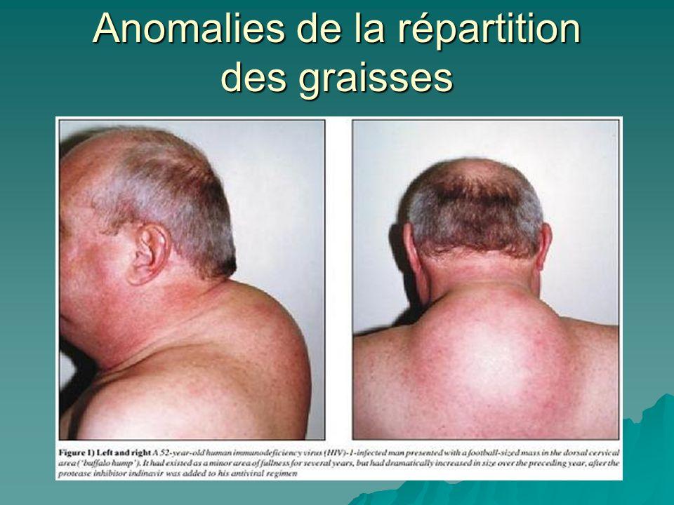 Anomalies de la répartition des graisses