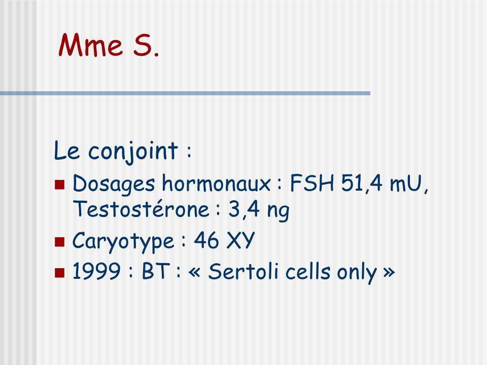 Mme S. Le conjoint : Dosages hormonaux : FSH 51,4 mU, Testostérone : 3,4 ng.