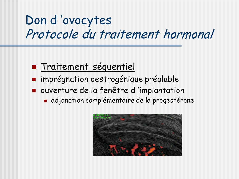 Don d 'ovocytes Protocole du traitement hormonal