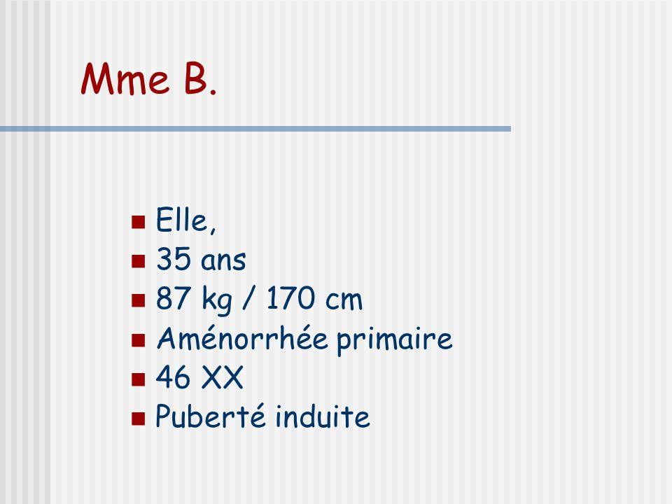 Mme B. Elle, 35 ans 87 kg / 170 cm Aménorrhée primaire 46 XX