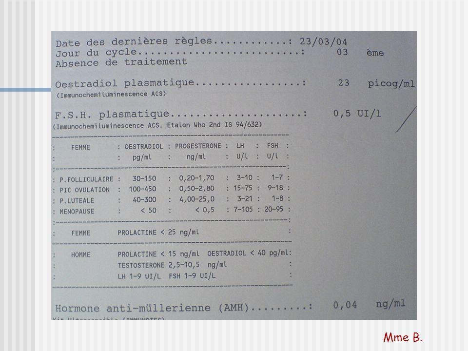 Conjonction insuffisance hypogonadotrope et ovarienne