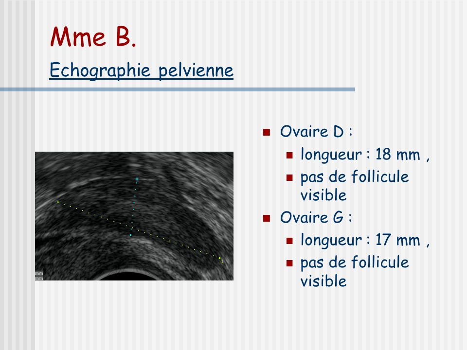 Mme B. . Echographie pelvienne