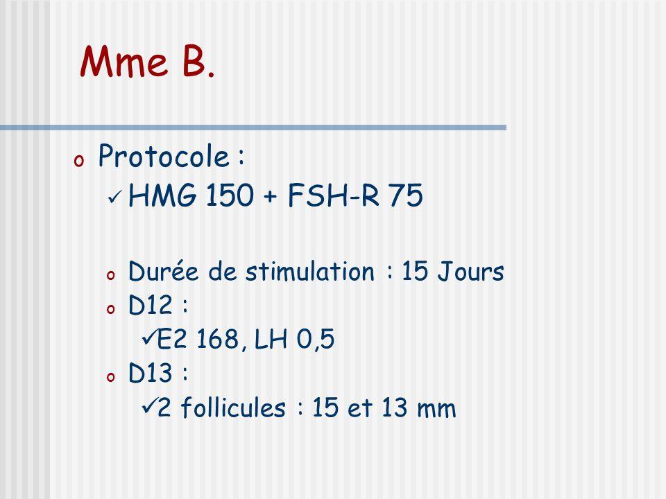 Mme B. Protocole : HMG 150 + FSH-R 75 Durée de stimulation : 15 Jours
