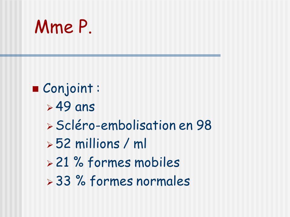 Mme P. Conjoint : 49 ans Scléro-embolisation en 98 52 millions / ml