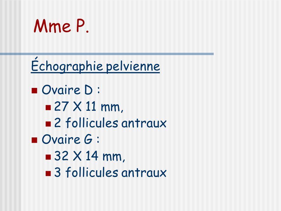 Mme P. Échographie pelvienne Ovaire D : 27 X 11 mm,