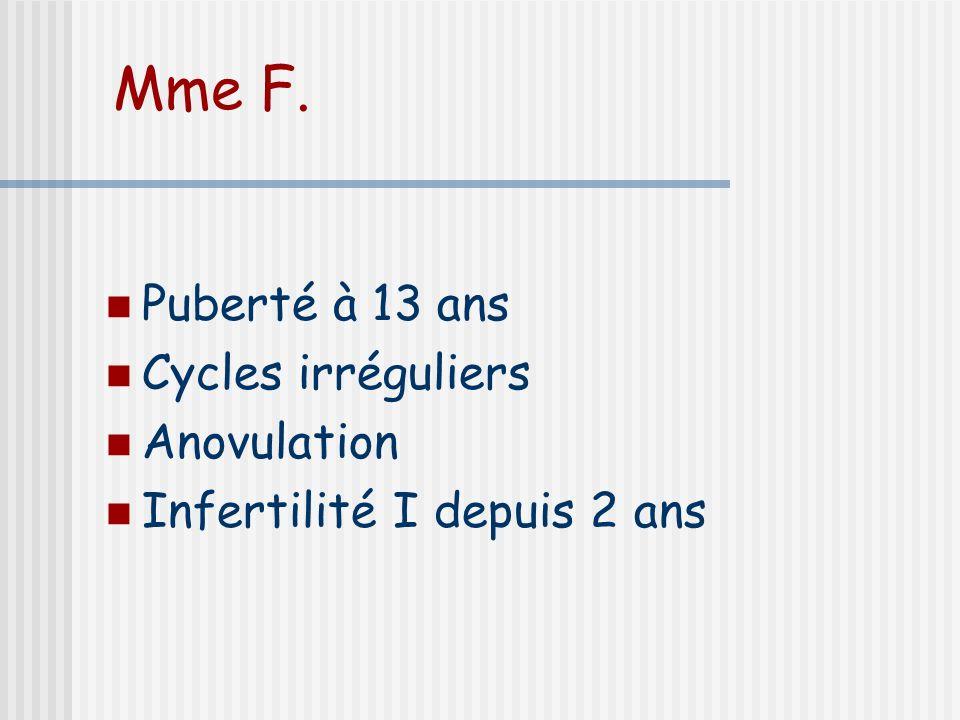 Mme F. Puberté à 13 ans Cycles irréguliers Anovulation