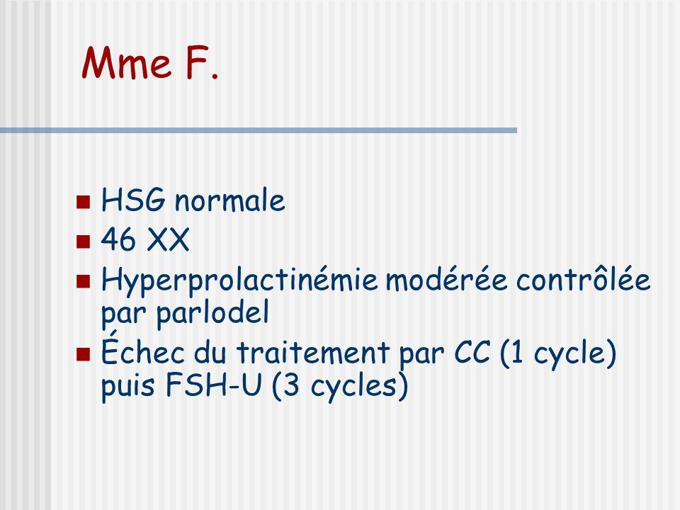 Mme F. HSG normale. 46 XX. Hyperprolactinémie modérée contrôlée par parlodel. Échec du traitement par CC (1 cycle) puis FSH-U (3 cycles)