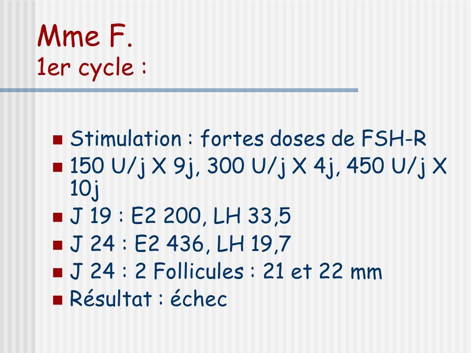Mme F. 1er cycle : Stimulation : fortes doses de FSH-R