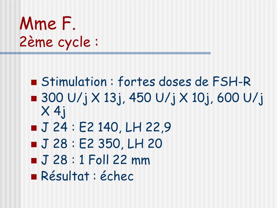 Mme F. 2ème cycle : Stimulation : fortes doses de FSH-R