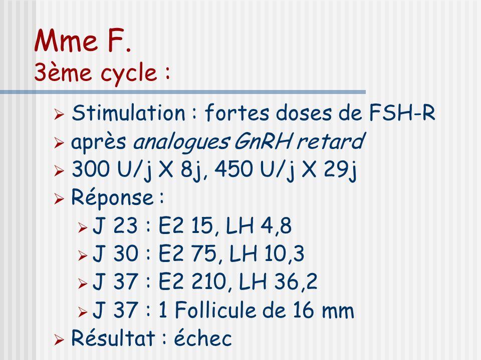 Mme F. 3ème cycle : Stimulation : fortes doses de FSH-R