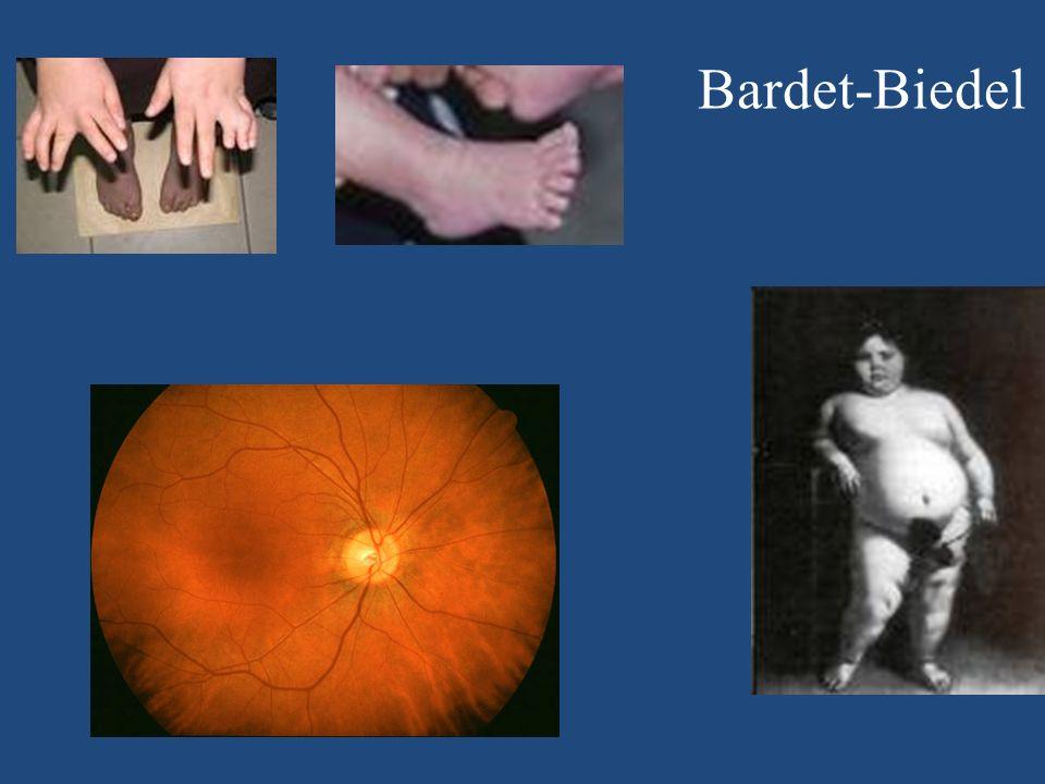 Bardet-Biedel Dystrophie maculaire 17