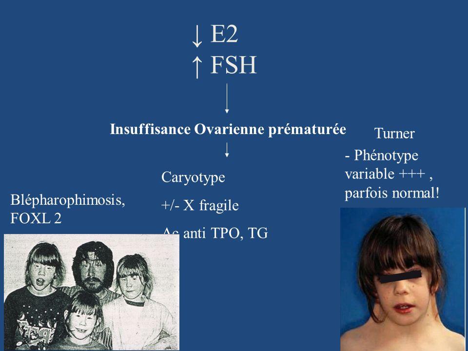↓ E2 ↑ FSH Insuffisance Ovarienne prématurée Turner