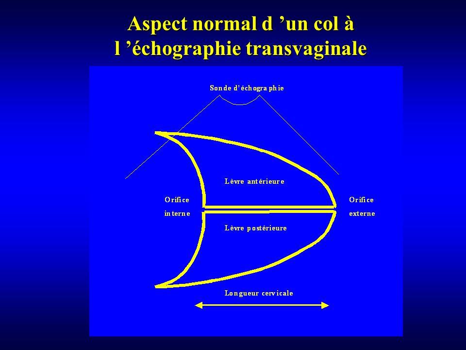 Aspect normal d 'un col à l 'échographie transvaginale