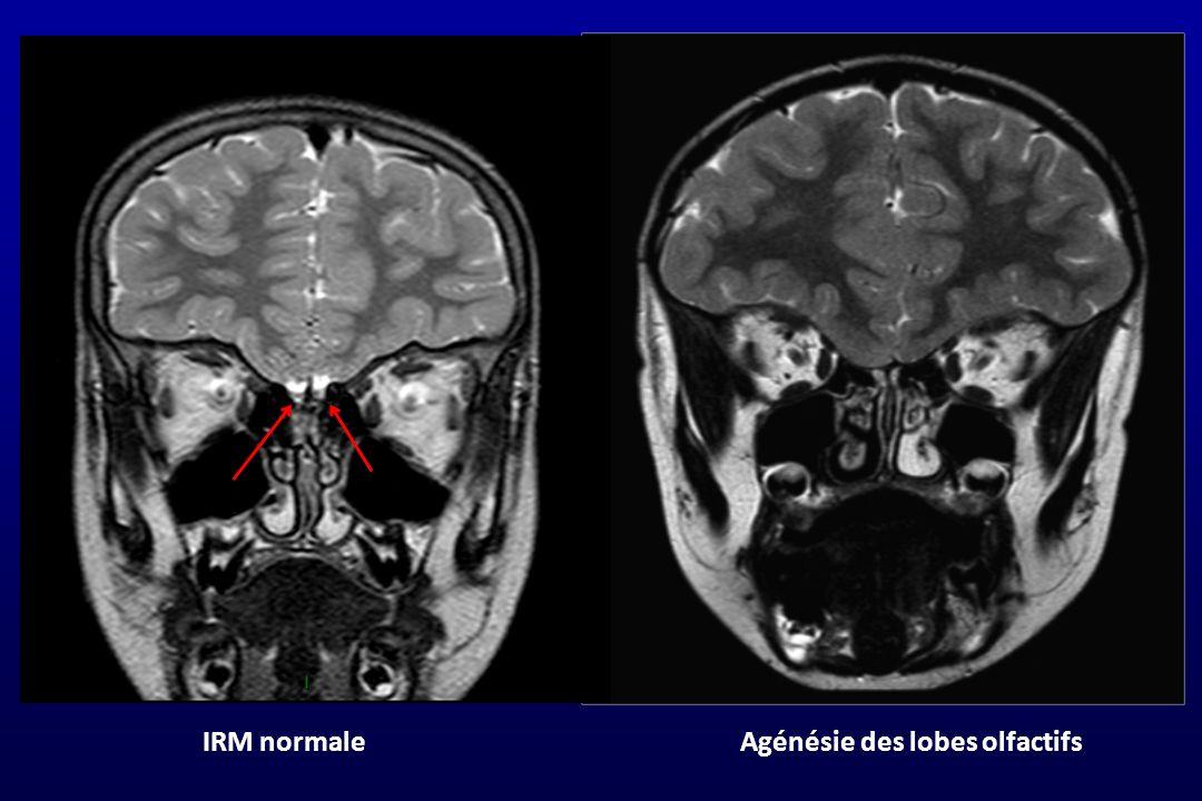 IRM normale Agénésie des lobes olfactifs