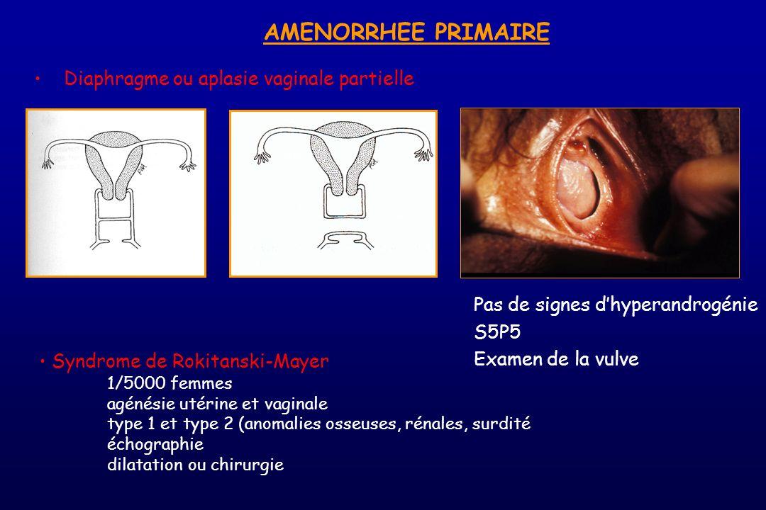 AMENORRHEE PRIMAIRE Diaphragme ou aplasie vaginale partielle